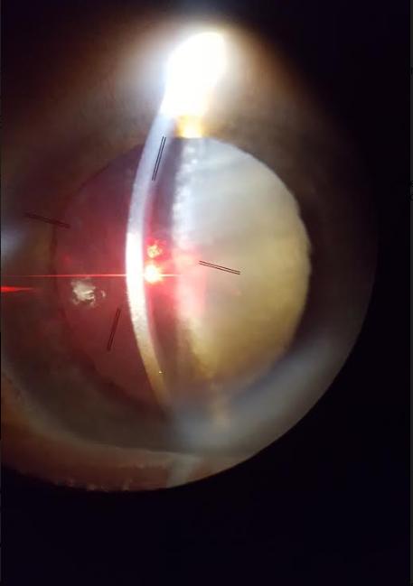 Impacto Yag en el centro de la cápsula anterior previo a iniciar la cirugía. 2.5mJ