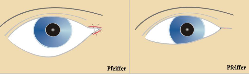 Imagen 6. Cantoplastia medial. Sutura de fibras de músculo orbicular en el canto medial