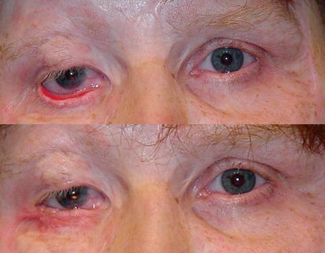 Imagen 14. En la imagen superior se puede observar un ectropion cicatricial que produce un lagoftalmos al cierre palpebral. En la imagen inferior se ha reconstruido el párpado inferior mediante liberación de las adherencias, injerto de piel, reaplicación de los retractores y cantoplastia.