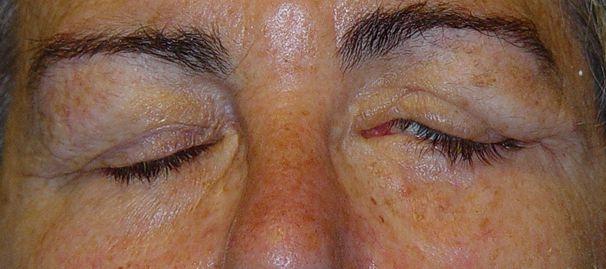 Imagen 1. Lagoftalmos nasal de 4 mm en paciente con parálisis facial izquierda. Como se puede observar la paciente tiene fenómeno de Bell bueno sin exposición corneal.