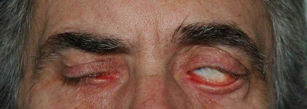 Imagen 2. Lagoftalmos en paciente con ectropion de párpado inferior izquierdo. El paciente conserva un buen fenónemo de bell con mínima exposición corneal.
