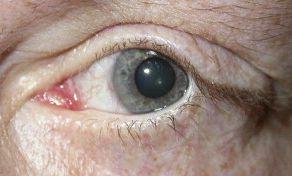 Imagen 4. Tarsorrafia permanente. Resultado postoperatorio.