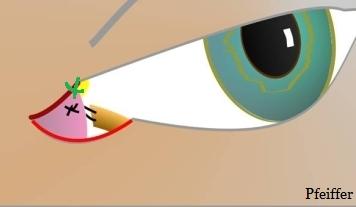Imagen 5. Cantoplastia lateral alta. Tira tarsal anclada en la cara interior del margen orbitario lateral. La cruz negra muestra el punto de anclaje en una tira tarsal convencional. La cruz verde en una tira tarsal alta. En nuestro centro se realiza con suturas doblemente armadas 5/0 (Nylon) con aguja pequeña y curva.