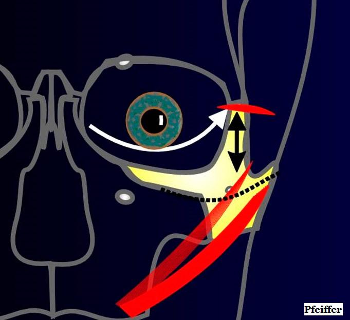 Imagen 16. Midface Lifting. La flecha blanca marca la altura del margen palpebral inferior ideal que conseguiremos tras elevar en bloque la región malar. La flecha negra marca el vector de elevación de la zona malar. La línea negra punteada no se debe sobrepasar para no dañar los nervios faciales.
