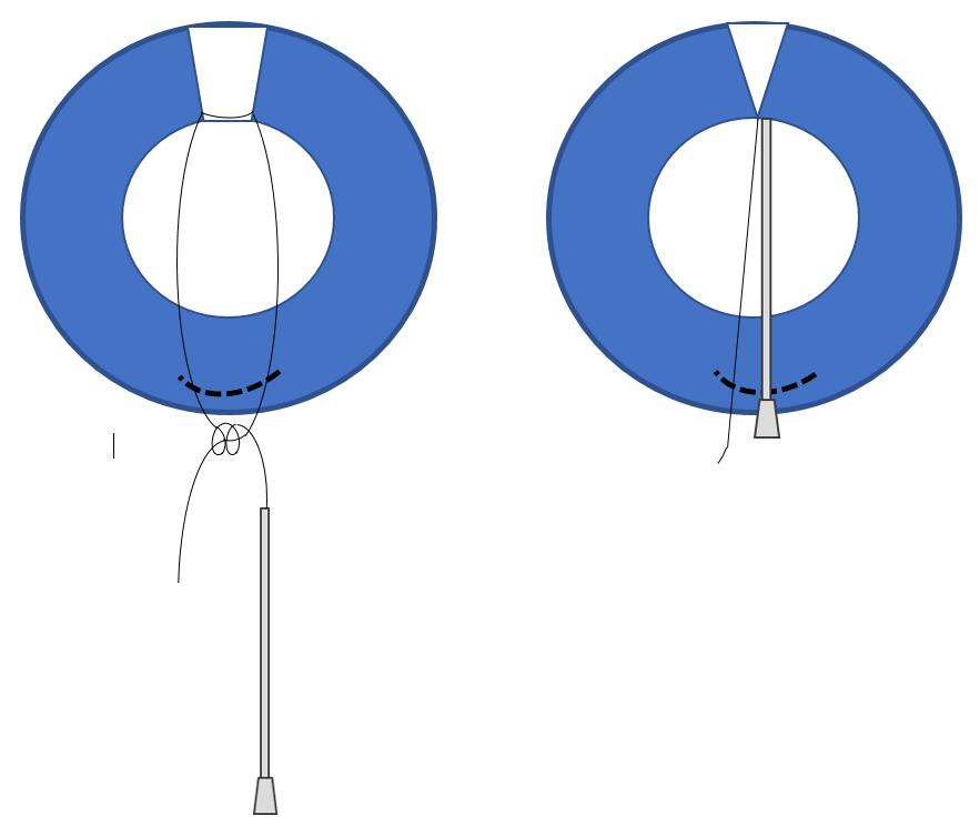 """Técnica de """"push-knot needle"""""""