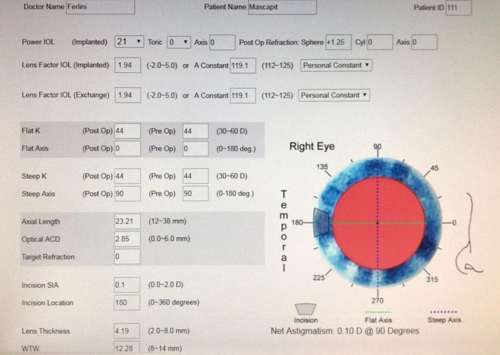 Figura 1a. Planteamos un paciente con un error esférico residual de + 1,25 dp