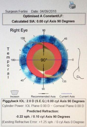 Figura 1b. Según formula deberíamos poner un lente de 2 dp en sulcus (considerando cte A 119.1).