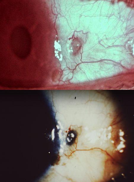 Fig. 15 Evolución de una úlcera escleral de profundidad media a profunda