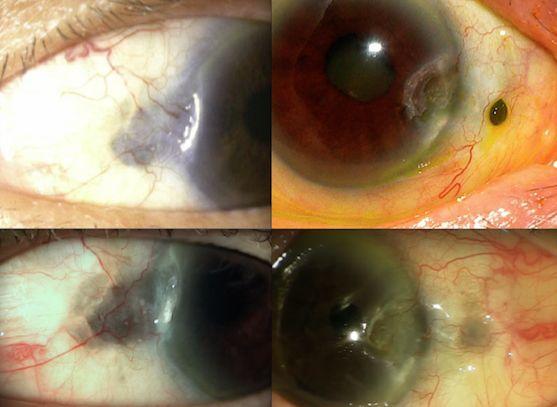 Fig. 16 Paciente con lesiones en ambos ojos. Tiene cerca de 25 años de seguimiento