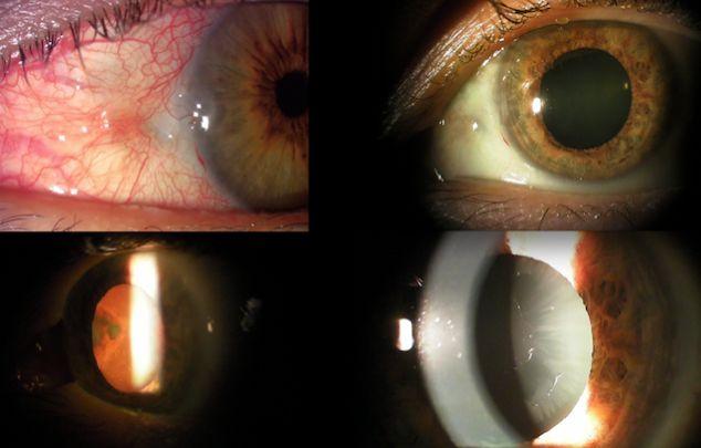 Fig. 18 Único caso que presentó glaucoma por síndrome pseudo-exfoliativo. Ojo adelfo normal