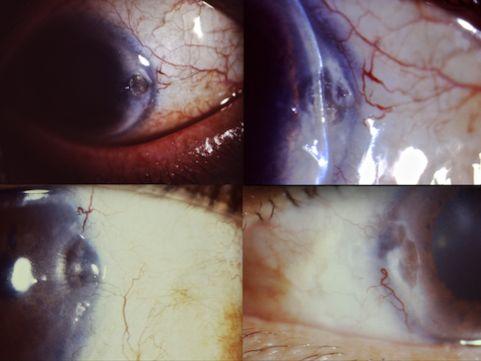Fig. 7.- Adelgazamientos y úlceras de la córnea