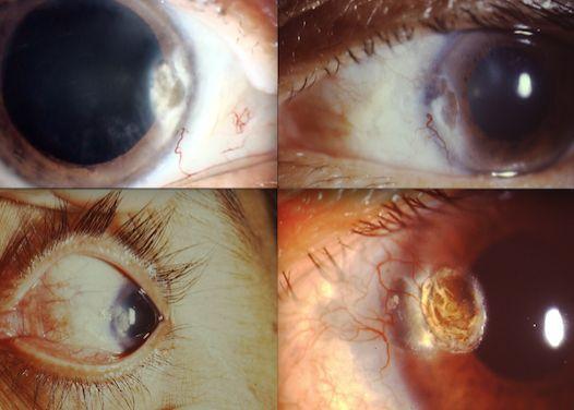 Fig. 8.- Lesiones corneales
