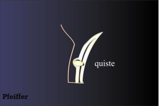 Imagen 1. Localización de un chalazión en un corte sagital del párpado. El nódulo se origina a partir de las glándulas de Meibomio situadas en la placa tarsal.