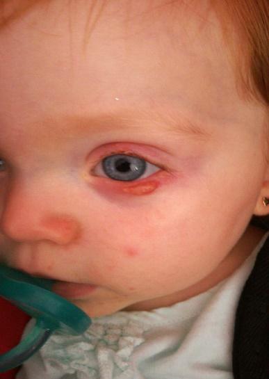 Blefaritis en niños