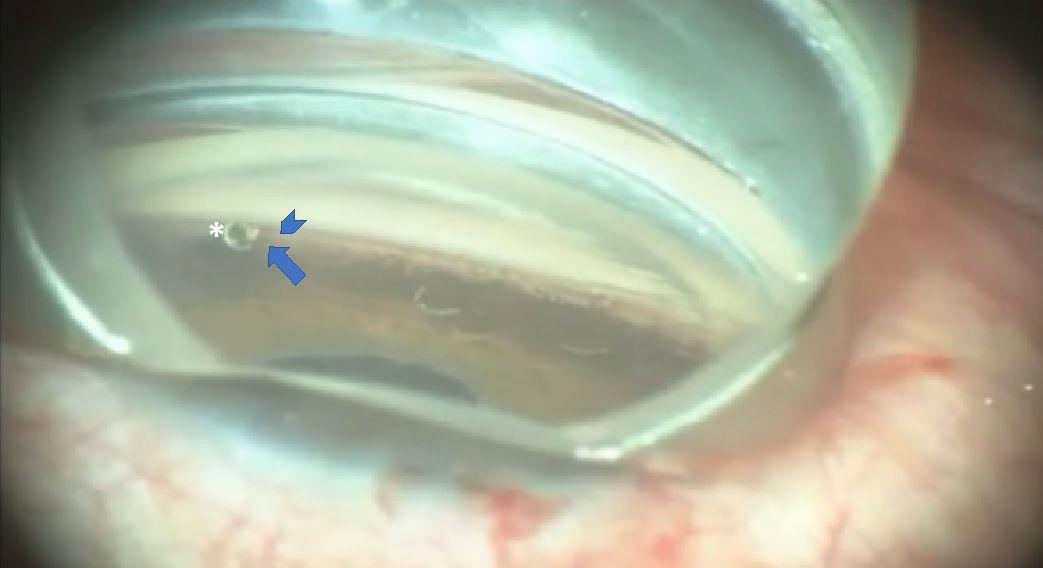 Implante ya colocado (asterisco) entre el espolón escleral (cabeza de flecha) y la raíz del cuerpo ciliar (flecha). Dr. J Belda