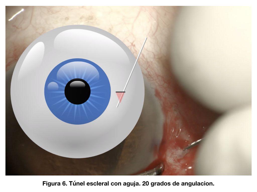 Figura 6. Túnel escleral con aguja. 20 grados de angulación.