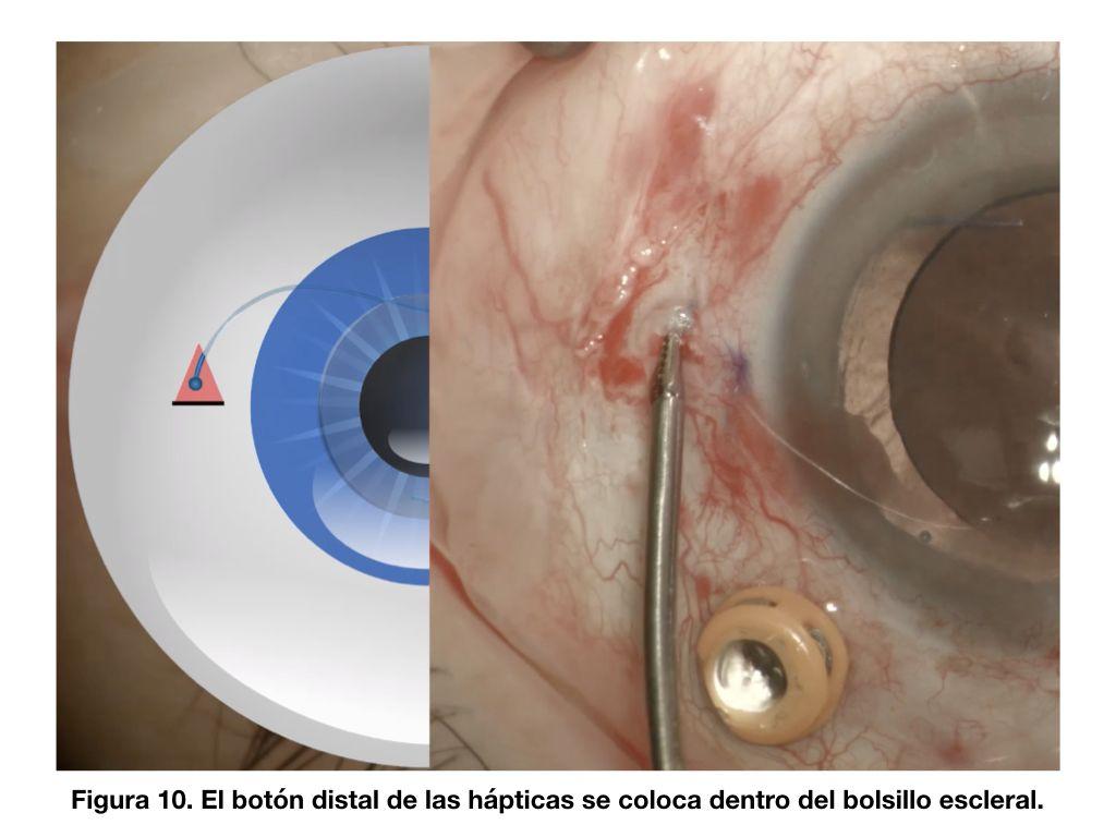 Figura 10. El botón distal de las hápticas se coloca dentro del bolsillo escleral.