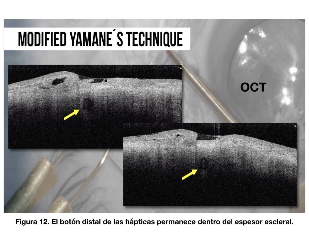 Figura 12. El botón distal de las hápticas permanece dentro del espesor escleral.