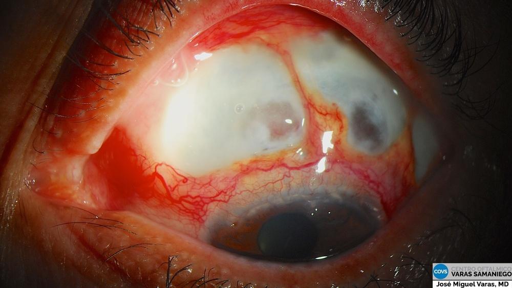 Figura 3: Aspecto ocular tras inicio de tratamiento con antiTNF.