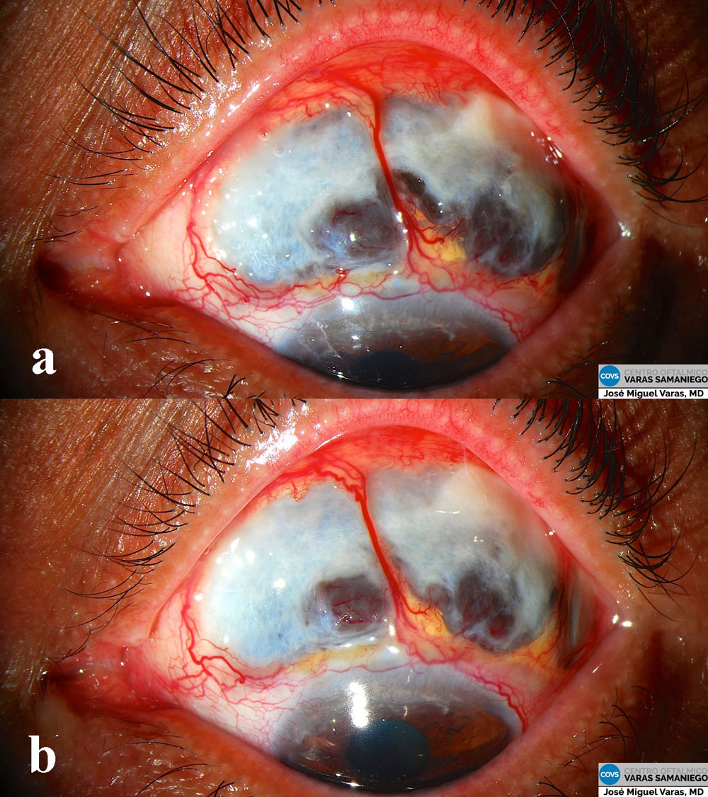 Figuras 5a y 5b: Aspecto de la lesión inactiva en proceso de recuperación.
