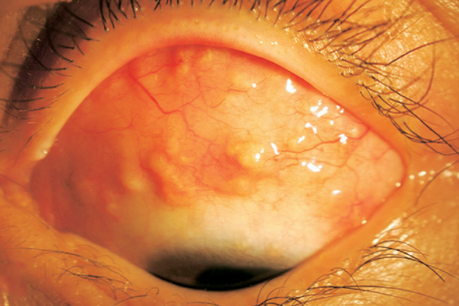 Joo, Youn Oh, Won;Ryang; Wee. Published in Ophthalmology 2008.Cyclosporine fot conjunctival sarcoidosis.