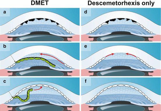 Figura 1. La primera columna (a,b,c) resume la técnica DMET. Tras realizar la descematorrexis, se trasplanta el injerto endotelial y de la membrana de Descemet libre y flotante en la cámara anterior, únicamente adherida a la córnea receptora a nivel de la incisión corneal por el cual se introduce el injerto. La segunda columna (d,e,f) ilustra la técnica DSO, es decir, únicamente la descematorrexis sin trasplante de injerto. Ambas técnicas lograran la transparencia corneal en pacientes con FED mediante la estimulación de la respuesta migratoria endotelial de células receptoras aún funcionantes.