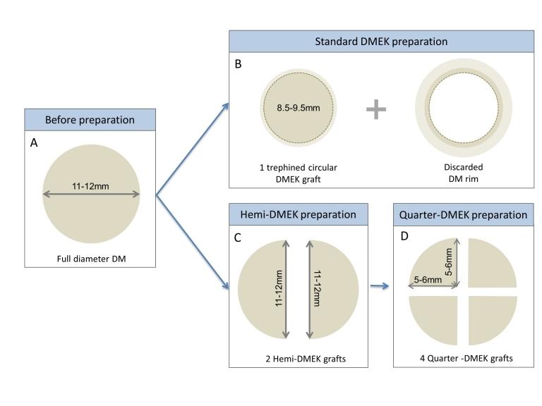 Figura 2: El injerto extraído de la córnea donante es una circunferencia con un diámetro de 11-12mm . El injerto en una DMEK reglada es una circunferencia de 8,5 a 9,5mm de diámetro (B), una hemi-circunferencia de 11-12mm por 5-6 mm en una Hemi-DMEK , y un cuarto de circunferencia de 5-6mm x 5-6mm en una Quarter-DMEK.