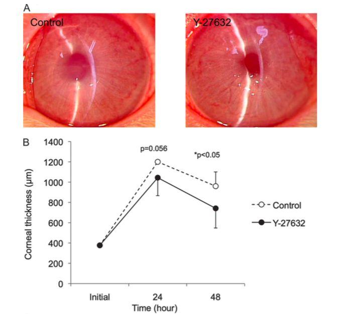 Figura 5: Las gotas oculares Y-27632 mejoraron la cicatrización de heridas en un modelo de conejo. A: la microscopía con lámpara de hendidura reveló que la transparencia corneal fue mayor en el grupo Y-27632 en comparación con el grupo control. B: la paquimetría por ultrasonido reveló que el grosor de la córnea era significativamente más delgado en el grupo tratado con Y-27632 en comparación con el grupo control después de 48 horas. Reproducido de: Okumura N, Koizumi N, Ueno M, Sakamoto Y, Takahashi H, Hamuro J, et al. The New Therapeutic Concept of Using a Rho Kinase Inhibitor for the Treatment of Corneal Endothelial Dysfunction. (Cornea 2011;30(Suppl. 1):S54–S59)