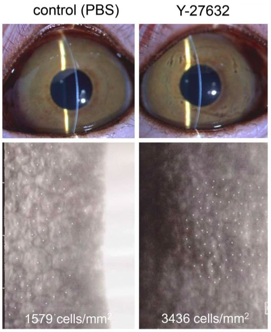 Figura 7: El tratamiento tópico con el inhibidor Y-27632 de ROCK promueve la recuperación de la densidad celular en un modelo de primate con daño parcial endotelial corneal.