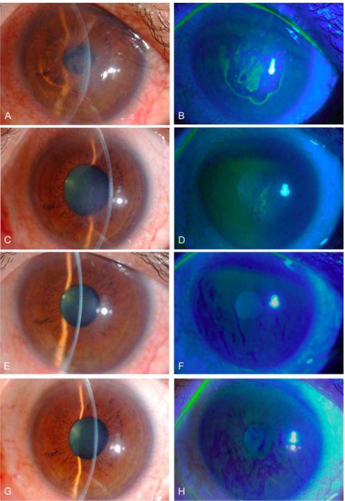 Figura 8: Fotografías de lámpara de hendidura de un paciente con distrofia corneal de Fuchs antes y después de la congelación transcorneal y el tratamiento con inhibidor ROCK. Antes del tratamiento, se detectó un edema corneal central (A) acompañado de bullas epiteliales (B). Tres días después del tratamiento, la erosión corneal creada por la congelación transcorneal ya se había curado y se detectaron bullas leves (C, D). Cabe señalar que se observó menos edema corneal a los 2 días que en la imagen previa al tratamiento. Seis meses después del tratamiento, el edema corneal se redujo significativamente y la córnea había recuperado su claridad (E). No se observó daño epitelial en la tinción con fluoresceína (F). Dos años después del tratamiento, la córnea del paciente permanece clara con buena visión (20/16) (G, H). Reimpreso de Koizumi et al con permiso de Lippincott Williams & Wilkins.