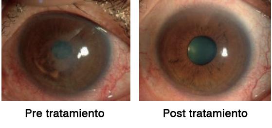 """Figura 9: Investigación clínica sobre el uso de gotas oculares Y-27632 para el tratamiento de la descompensación corneal. Se muestra un caso representativo de un paciente con edema corneal central debido a distrofia corneal endotelial de Fuchs. Antes del tratamiento, se observó edema corneal central (a), pero se eliminó el edema corneal y se recuperó la agudeza visual de logMAR 0.70 a -0.18 después de 6 meses de tratamiento (b). Reproducido del estudio de Okumura et al. """"The ROCK inhibitor eye drop accelerates corneal endothelium wound healing"""""""