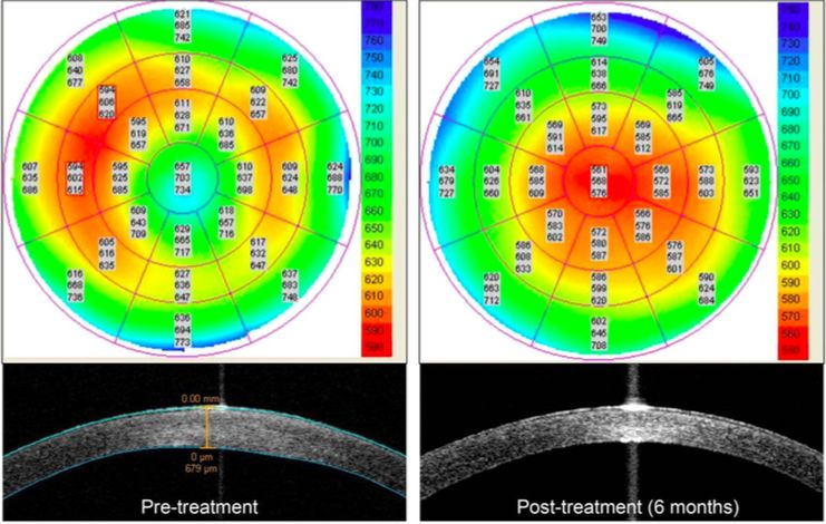 Figura 10: El examen con tomografía de coherencia óptica del segmento anterior muestra una mejoría notable del edema corneal en un paciente con distrofia corneal de Fuchs tratada con un inhibidor ROCK tópico, 6 meses después del inicio del tratamiento.