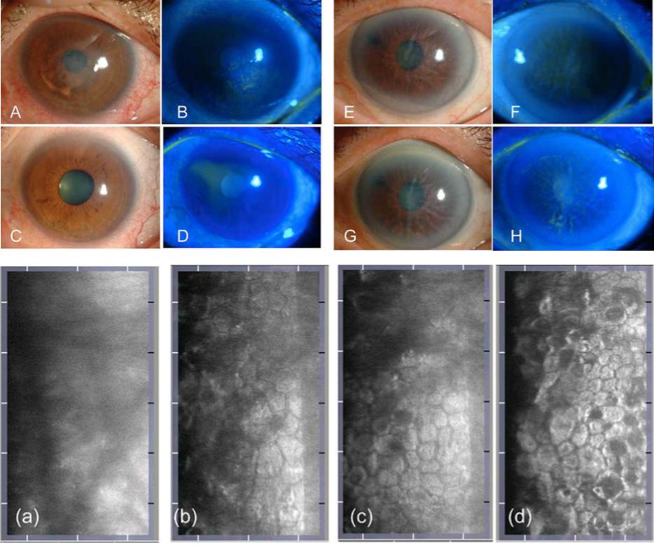 Figura 11: Ensayo clínico inhibidor ROCK Y-27632 tópico para el tratamiento de pacientes con edema corneal central y edema corneal difuso. (A, B) Se muestra el caso representativo de un paciente con edema corneal central. Antes del tratamiento, se detectó edema corneal central en el paciente 1. (C, D) Seis meses después del tratamiento, el edema corneal se redujo significativamente y la agudeza visual se recuperó de logMAR 0.70 a 0.18. (E, F) Se muestra un caso representativo de un paciente con edema corneal difuso. Antes del tratamiento, se observó un edema corneal difuso debido a la queratopatía bullosa inducida por iridotomía con láser de argón. (G, H) Seis meses después del tratamiento, el edema corneal persistió y no se obtuvo una recuperación de la agudeza visual. (I) El endotelio corneal del caso 1 observado por microscopía especular sin contacto antes (A, B) y 6 meses después del tratamiento (C, D). Antes del tratamiento, no se pudo obtener una imagen clara del endotelio corneal desde la parte central de la córnea debido al edema corneal (A). En contraste, se observaron algunas células endoteliales con guttae en el área central del mismo ojo (B). Seis meses después del tratamiento, se obtuvieron imágenes microscópicas especulares tanto del centro (C) como de la córnea periférica (D). La densidad celular aproximada después del tratamiento fue de 1200 a 1500 células / mm2 en ambas áreas.