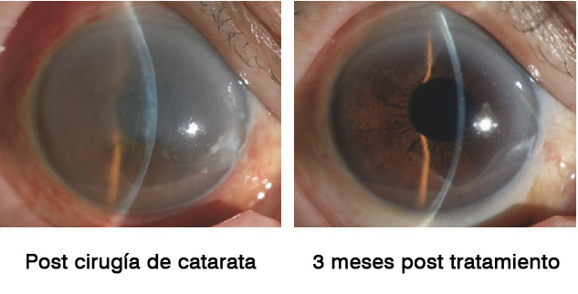 """Figura 12: Una mujer de 84 años diagnosticada de catarata se sometió a una facoemulsificación. Durante la cirugía, la membrana de Descemet se desprendió espontáneamente del túnel de incisión superior y se aspiraron más de 2/3 de la misma. La paciente fue remitido a la clínica de córnea de la Universidad de Medicina de la Prefectura de Kyoto debido al grave edema corneal. La paciente fue tratada con las gotas oculares Y-27632 1 mM durante 6 meses. A las 2 semanas, la córnea había recuperado su claridad y la agudeza visual del paciente había mejorado a 20/20 a los 3 meses. N. Okumura, R. Inoue, Y. Okazaki et al., """"Effect of the Rho kinase inhibitor Y-27632 on corneal endothelial wound healing,"""" Investigative Ophthalmology & Visual Science, vol. 56, no. 10, pp. 6067–6074, 2015."""