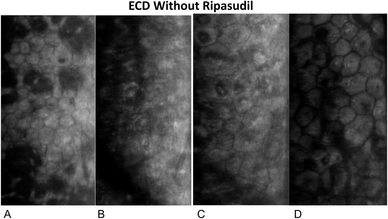 Figura 13: Micrografías especulares del endotelio corneal: el endotelio periférico antes de la extracción de la Decemet (A) y el endotelio central a 3 (B), 6 (C) y 12 meses (D) después de DSO sin tratamiento tópico con ripasudil.