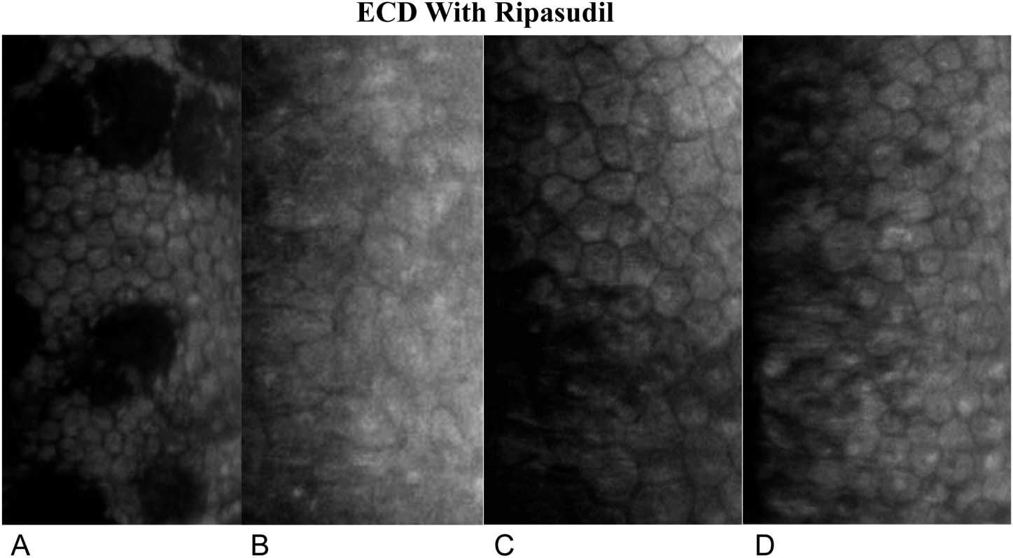 Figura 14: Micrografías especulares del endotelio corneal: el endotelio periférico antes de la extracción de la membrana de Descemet (A) y el endotelio central en 3 (B), 6 (C) y 12 meses (D) después de la extracción de la membrana de Descemet tratada por vía tópica con ripasudil.