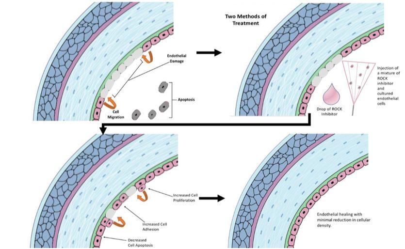 Figura 16: Vista simplificada del tratamiento hipotetizado del daño endotelial corneal mediante inyecciones en la cámara anterior y / o gotas oculares tópicas de inhibidores de la Rho quinasa.