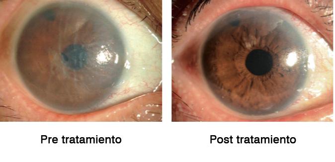 Figura 17: Imágenes representativas de la efectividad de la terapia de inyección de células endoteliales corneales cultivadas (CEC) en investigación clínica. Imágenes representativas de microscopía con lámpara de hendidura del primer paciente, una mujer japonesa con descompensación endotelial corneal inducida por iridotomía con láser de argón (a). Después de la eliminación mecánica de una sección de 8 mm de diámetro del endotelio corneal, se inyectaron CEC humanas cultivadas junto con un inhibidor de ROCK en la cámara anterior. La agudeza visual preoperatoria fue de 0,04 debido al edema en el epitelio corneal y el estroma. La agudeza visual postoperatoria se recuperó a 1.0, junto con la recuperación asociada de la transparencia corneal (b).