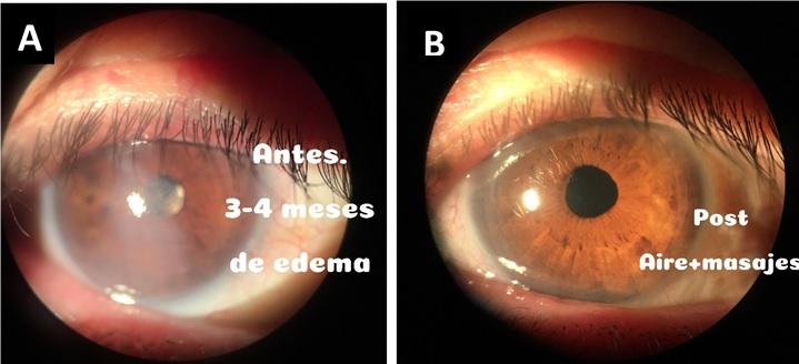 Figura 2. Caso de DPD compartido por el Dr. Andres Suarez. A) DPD pretratamiento. B) DPD post tratamiento con inyección intracameral de gas y masaje corneal externo.