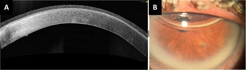 Figura 3. OCT de segmento anterior del OS, que muestra la MD aplicada. Fotoclínica de segmento anterior que muestra disminución del edema corneal.