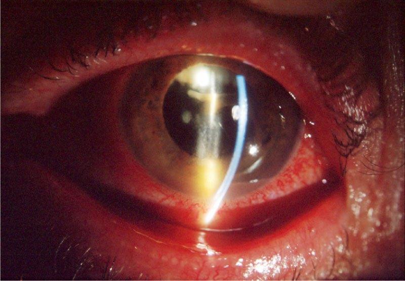 Fig. 2: Endoftalmitis crónica sacular tras facoemulsificación sin complicaciones hace 3 meses donde se observa una placa blanquecina e hipopion.