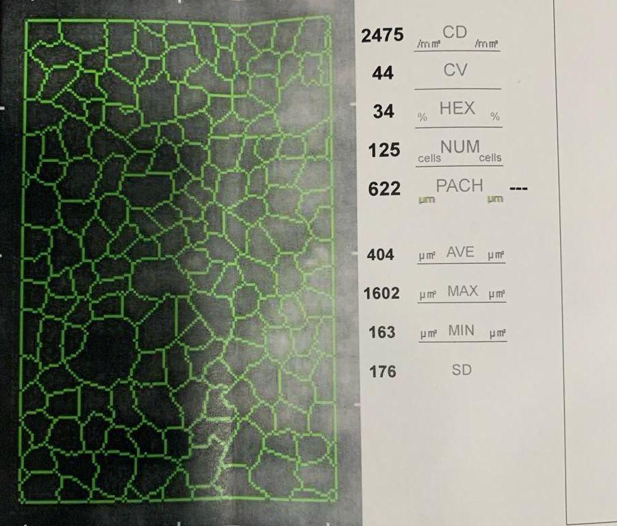 Ilustración 2. Imagen aportada por el Dr. Balparda. Microscopia especular que muestra un recuento endotelial (CD), de 2475 mm3 , un coeficiente de variación (CV) de 44, y una hexagonalidad (HEX) del 34%