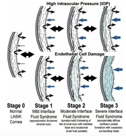 Ilustración 3. Clasificación propuesta por Dawson et al. SFI producido por aumento de presión o por daño endotelial.