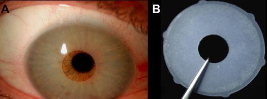 Ilustración 4. Imagen publicada en el artículo de la Dra.Garcia-Pous. Se muestra la forma del dispositivo NewIris. Implante de silicona de 11-13 mm de diámetro con una apertura pupilar de 3.5 mm y 0.16 mm de grosor. Diseñado para ser implatado en cámara anterior.