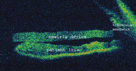 Ilustración 5. Tomografia de coherencia óptica de cámara anterior donde se muestra el implante NewIris apoyado sobre el iris y en contacto con la malla trabecular.