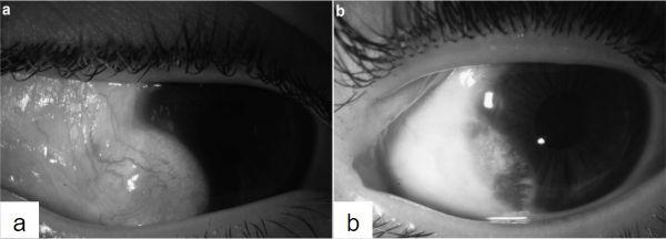 Imagen 12. (a) Dermoide limbar (b) luego de la remoción de dermoide con aplicación de MMC