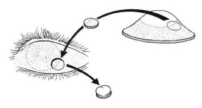 Imagen 13. El quiste dermoide se reseca y se reemplaza por tejido donante orientado de manera apropiada.
