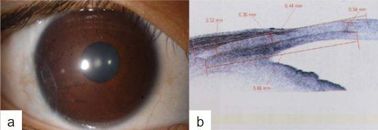 Imagen 15. (a) Escisión de dermoide con escleroqueratoplastia lamelar (b) AS OCT mostrando interfase entre donante y receptor(30)