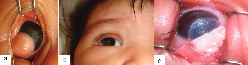 Imagen 18. (a) Quiste dermoide grado II (b) imagen postoperatorio © imagen postoperatoria con injerto de pericardio.