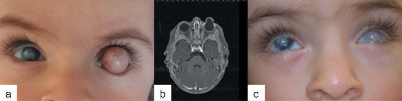 Imagen 19. (a) Dermoide central en OI (b) Resonancia magnética de las órbitas mostrando lesión quística con cámara anterior y lente no formados (c) Imagen a 1 año de la cirugía